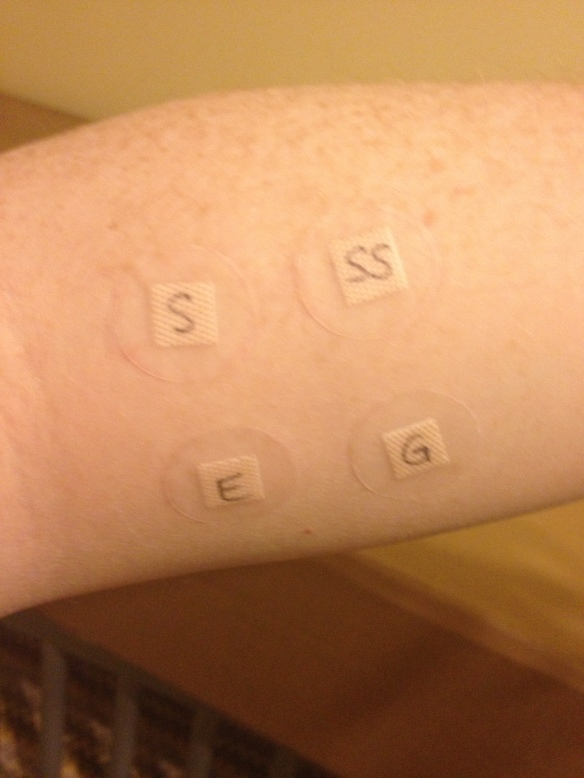 arm patch test